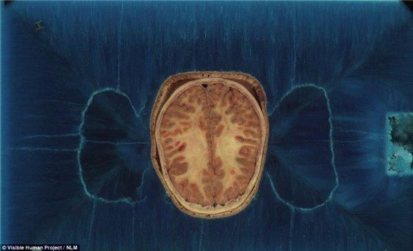 上图为头部的横截面,可以看到大脑的结构