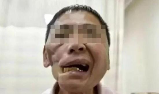 长期嚼槟榔,对牙齿磨耗严重图片
