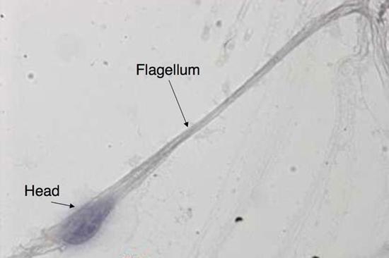 法国人造精子获得专利:卵细胞买账吗? - 精子 - IT之家