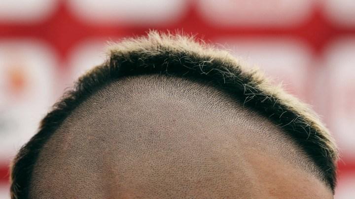 日媒:低头玩手机也会导致脱发