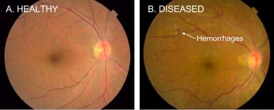 Google AI 算法助力降低糖尿病患者失明风险:F 分数达 0.95 超过医生小…